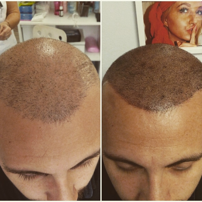 Saç simülasyonu istanbul