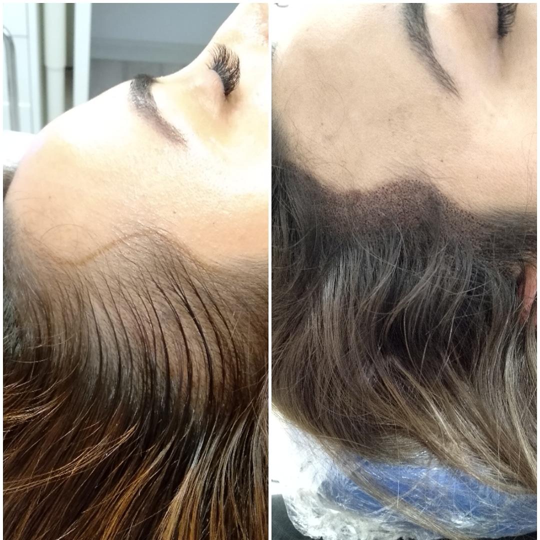 istanbul saç simülasyonu