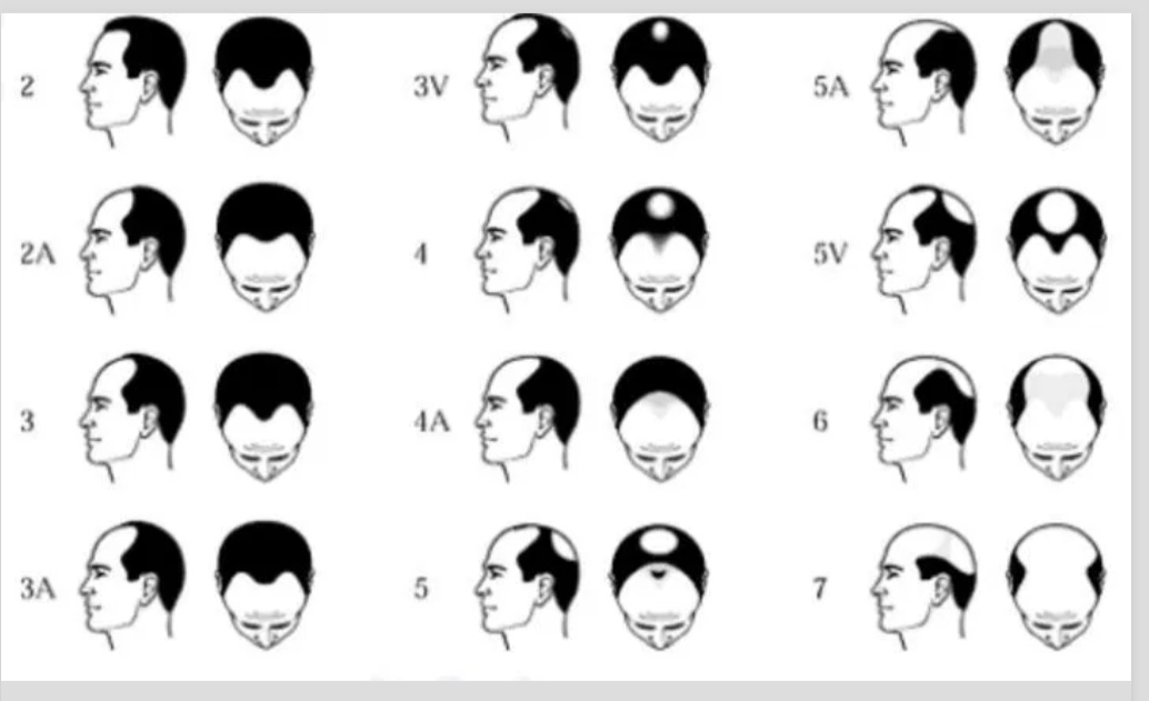 Bursa saç simülasyonu